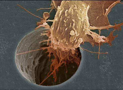 عکس: سلول سرطاني در حال حرکت