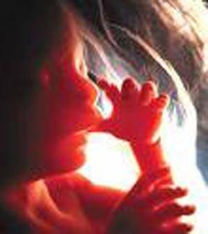 • انجام اکوکاردیو گرافی قلب جنین