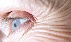 چرا پوست پير ميشود؟