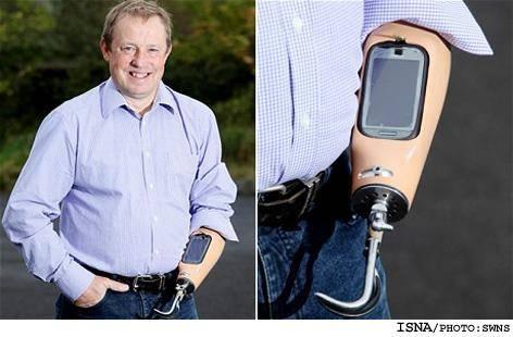 اولين دست مصنوعي كه تلفن همراه شد!