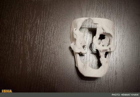 بزرگترین عمل جراحی تغییر چهره در ایران+تصاویر