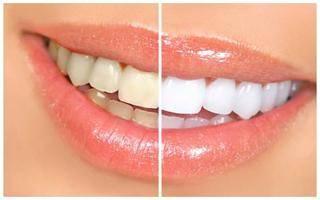 با پوست این میوه دندان های تان را سفید کنید
