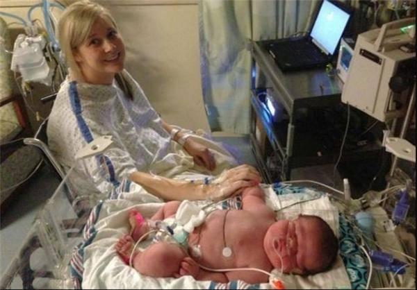 نوزاد ۶.۵ کیلویی در آمریکا به دنیا آمد