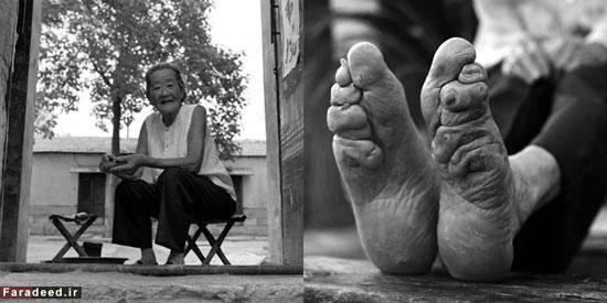 بازماندگان زنان پا کوچک در چین/تصاویر