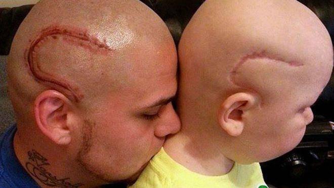 همدردی پدر با پسر سرطانیاش +عکس