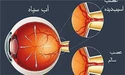 آب سیاه دومین علت نابینایی/ مهمترین علت ابتلا به گلوکوم