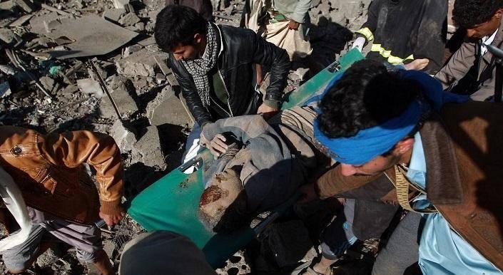 اسپوتنیک: یمن حق دفاع از خود در برابر تجاوز نظامی عربستان و متحدانش را دارد