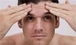 چربی پوست در افراد به صورت ژنتیکی و از بدو تولد وجود دارد